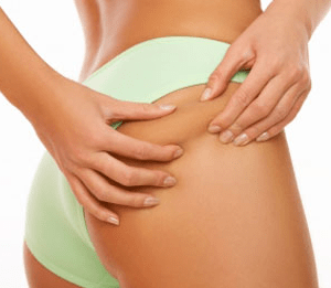 Πως να φύγει η κυτταρίτιδα, pos feugei i kittaritida, get rid of cellulite